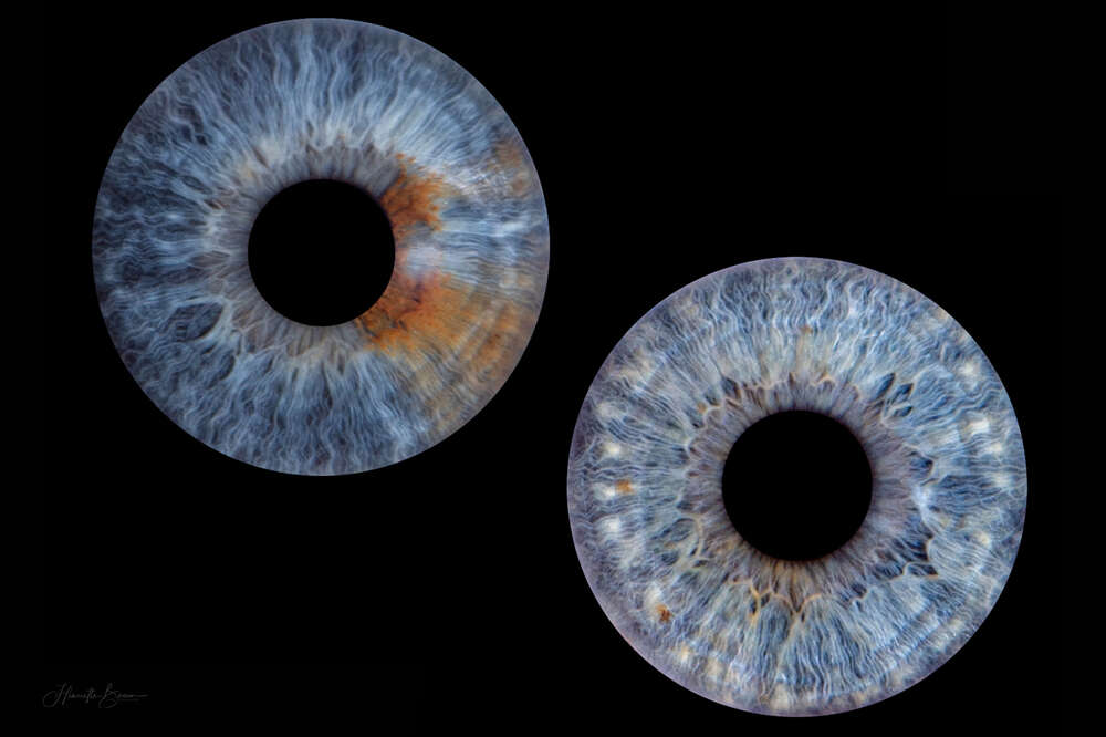 Irisfotografie (Fotowerkstatt Henriette Braun)